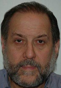 English: Mitch Elias hair transplant after htt...