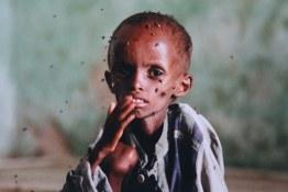 Image result for starving children