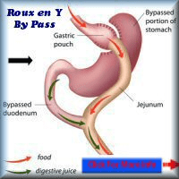 Roux-en-Y gastric bypass surgery france