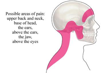 Migraine Cluster Cervicogenic Headache Neck Pain Jaw Pain Head Pain