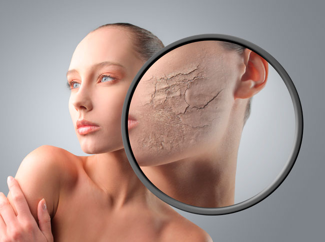 dry cracking skin dehydrated
