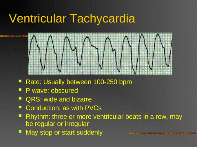Defibrillation and Cardioversion Acls - [PPT Powerpoint]