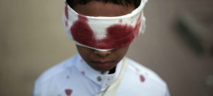 A boy with fake blood on his face and clothes to represent a victim participates in a protest against Saudi-led airstrikes in Sanaa, Yemen, Sunday, Nov. 27, 2016. (photo: Hani Mohammed/AP)