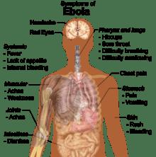 Symptoms_of_ebola-2