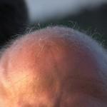 若白髪がはげないっていうのは都市伝説!? 遺伝の影響が大きいの?