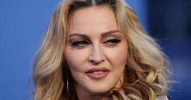 (FOTO) Toții fanii Madonnei își fac griji pentru sănătatea ei. A postat o fotografie unde apare cu picioarele pline de urme și cicatrici suspecte