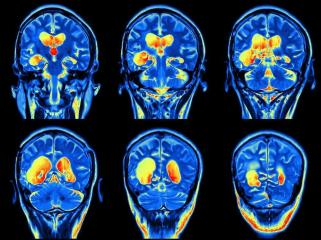 People With Mild COVID-19 May Experience 'Serious' Brain Disorders: UK Neurologists