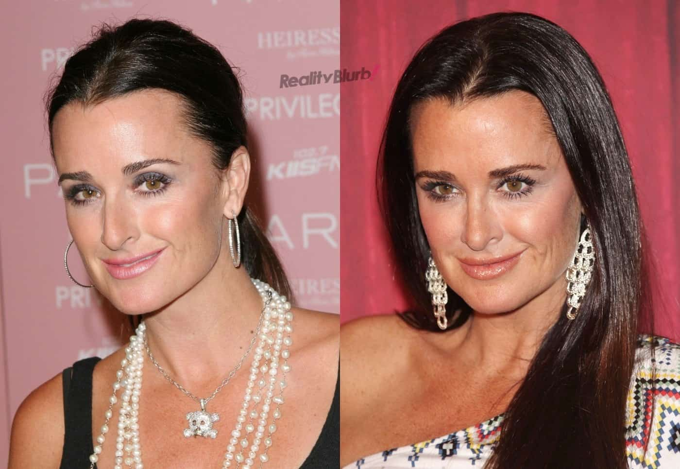 Kyle Richards Before and After Plastic Surgery