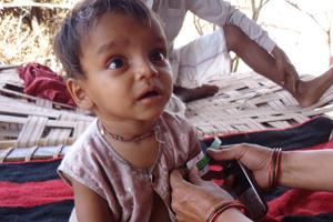 Checking MUAC measurement in India