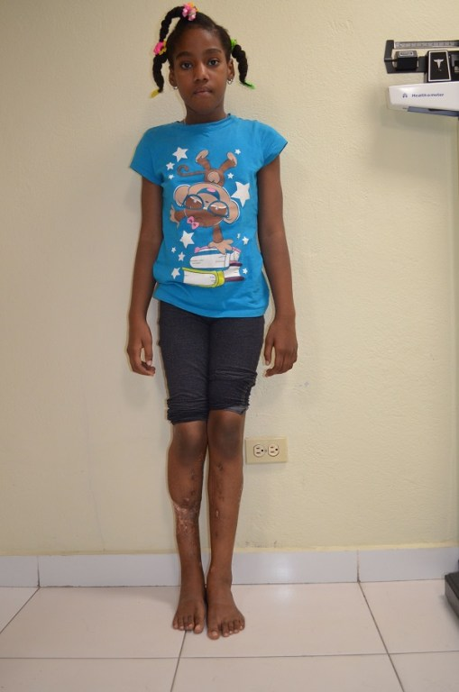 haitian girl with leg deformities