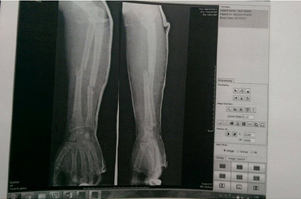 compound fracture of the left forearm 22-year-old man from Afghanistan
