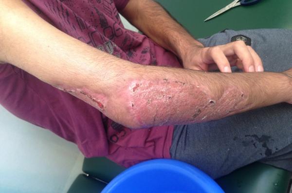 Flesh-Eating Disease 26-year-old man from Afghanistan