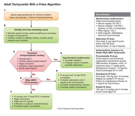 Algoritmo de Taquicardia con pulso en el adulto