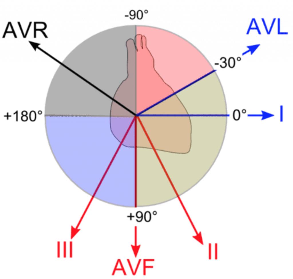 4 lead ekg placement diagram website tree ecg basics - r.e.b.e.l. em emergency medicine blog