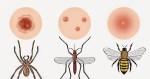picadura de insectos - Crepes de setas
