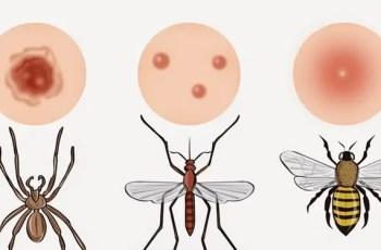 picadura de insectos - Remedios naturales para la alergia a la picadura de los insectos