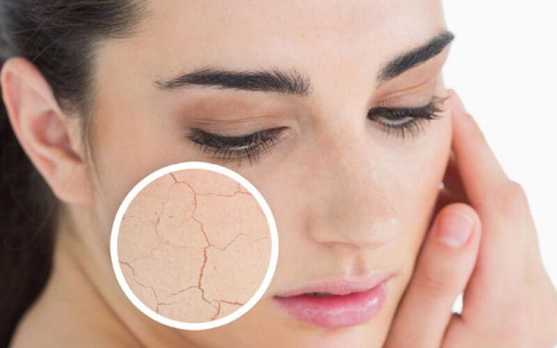 Dry-Skin-Cause-Wrinkles-800x500_c