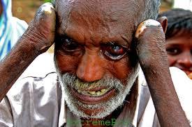 full of leprosy Luke 5