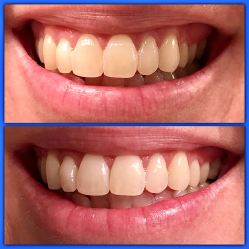 Whiter Teeth with Luster #teeth #beauty #luster #ad