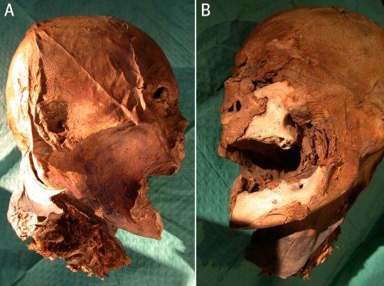 Cabeza momificada de Enrique IV