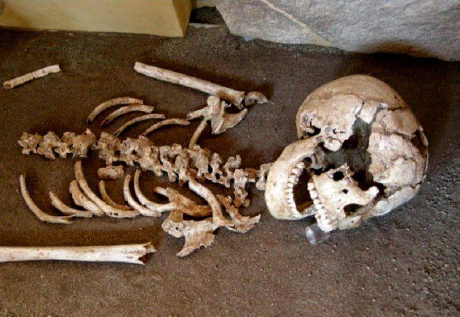 esqueleto celiaco roma