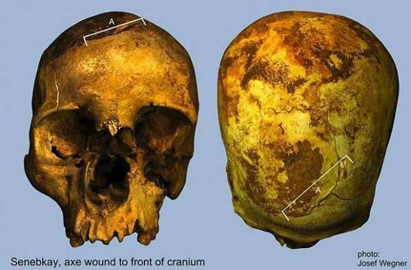 El cráneo de Senebkay presenta varias heridas profundas realizadas con hachas de guerra.