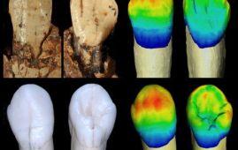 dientes neandertales