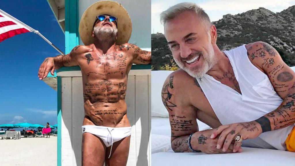 Foto confirma que tras tantas cirugías, a Gianluca sólo le faltó la circuncisión