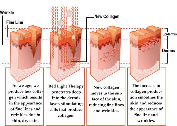 Image result for photon therapy skin diagram
