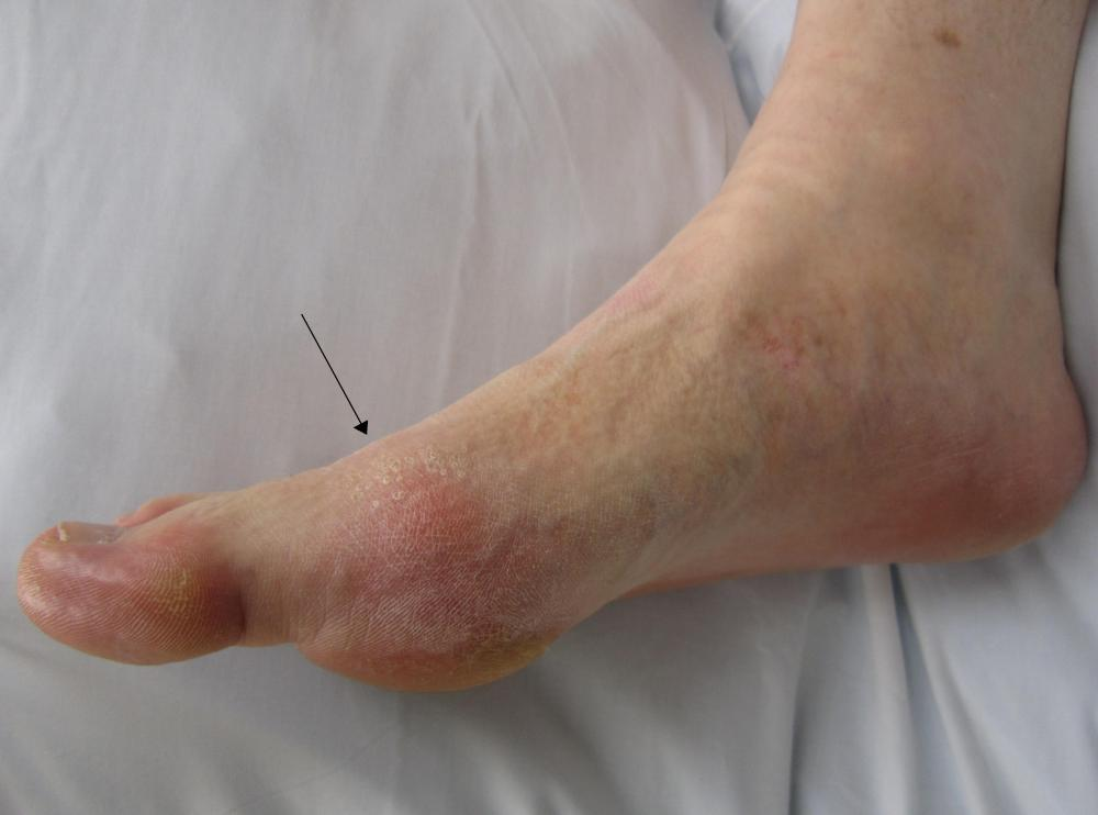 Gout Is Becoming A Young Persons Worst Nightmare (2/2)
