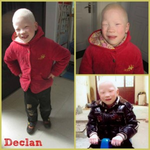 PD: A 3-photo collage of Declan, wearing a red coat in 2 photos & a black coat in the 3rd, sitting on a rocking horse. Declan has light blonde/white hair due to albinism.