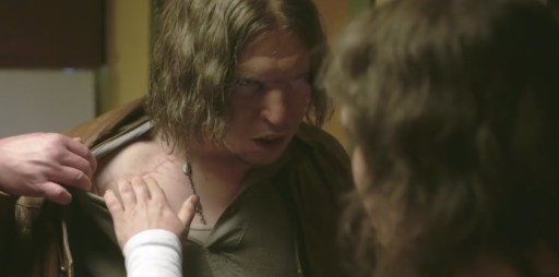 More (Eero Milonoff) left shows Tina (Eva Melander) right his scar caused by being hit by lightning in the movie Border
