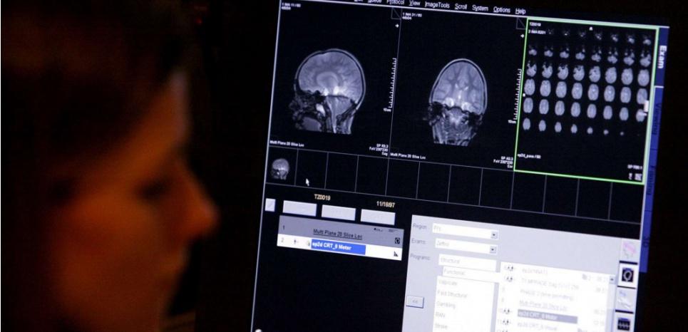 Grâce aux techniques d'imagerie médicales moderne, les chercheurs peuvent désormais recueillir de précieux indices sur la façon dont apparaissent les troubles du spectre autistique. ©EVAN VUCCI/AP/SIPA