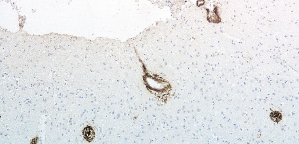 Dépôt de protéine amyloïde-bêta (en marron) dans le cerveau d'un patient ayant développé la maladie de Creutzfeldt-Jakob. après une greffe de méninges. ©Frontzek K, Lutz MI, Aguzzi A, Kovacs GG, Budka H.