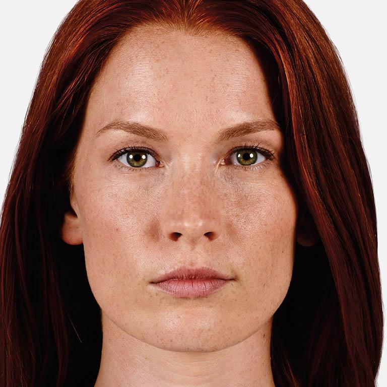 woman-thin-lips