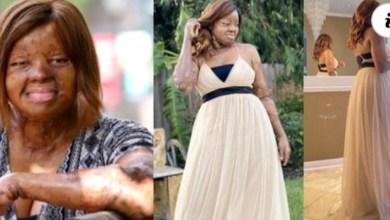 Sosoliso Airplane Crash Survivor, Kechi Okwuchi Celebrates 31st Birthday [Video]