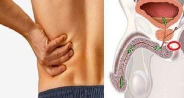 12-symptomes-du-cancer-de-la-prostate-que-les-hommes-ne-devraient-pas-ignorer