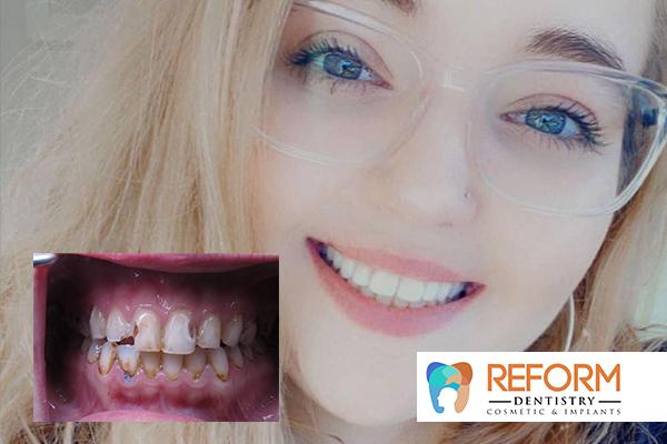 Reform Dentistry - Smile Gallery