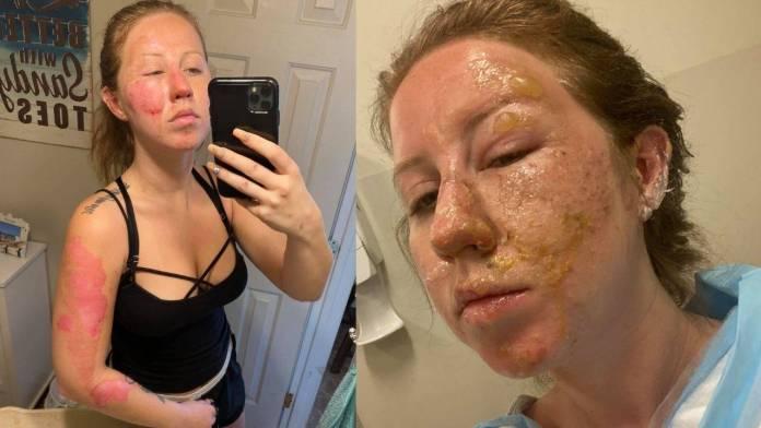 Meseros encienden bebida y queman el rostro de una turista en Quintana Roo
