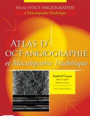 Atlas d'OCT-Angiographie et Maculopathie Diabétique