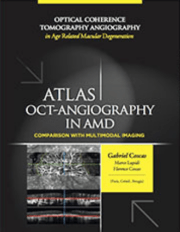 Atlas of OCT-Angiography in AMD