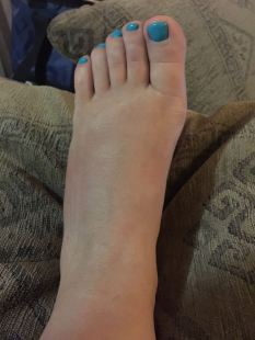My foot after dipping it in the pool for about half-an-hour - the swelling is noticeably down ©2015 Regina Martins
