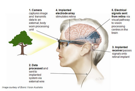 diagram of artificial eye 1978 z650 wiring pre bionic implanted in blind patient  the register