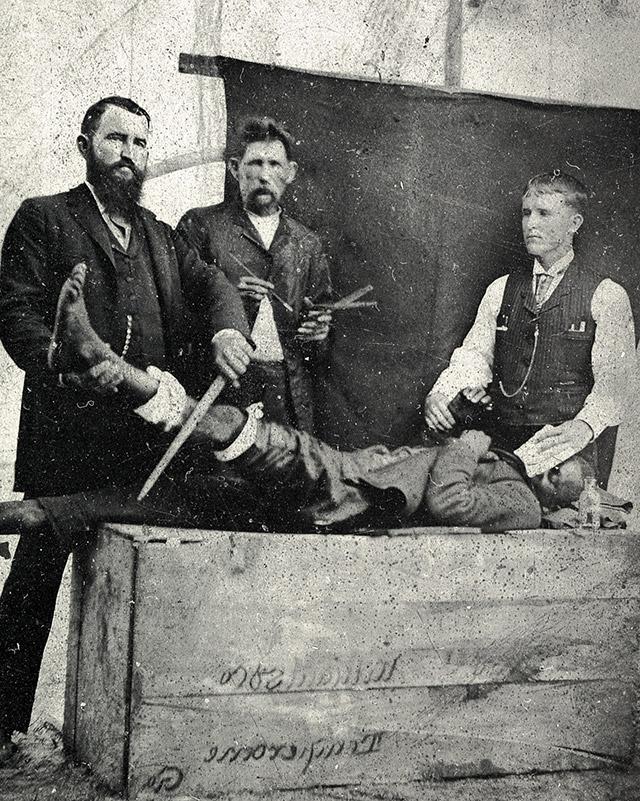 07 - Um dos primeiros procedimentos cirúrgicos utilizando éter como anestesia. 1855-1860