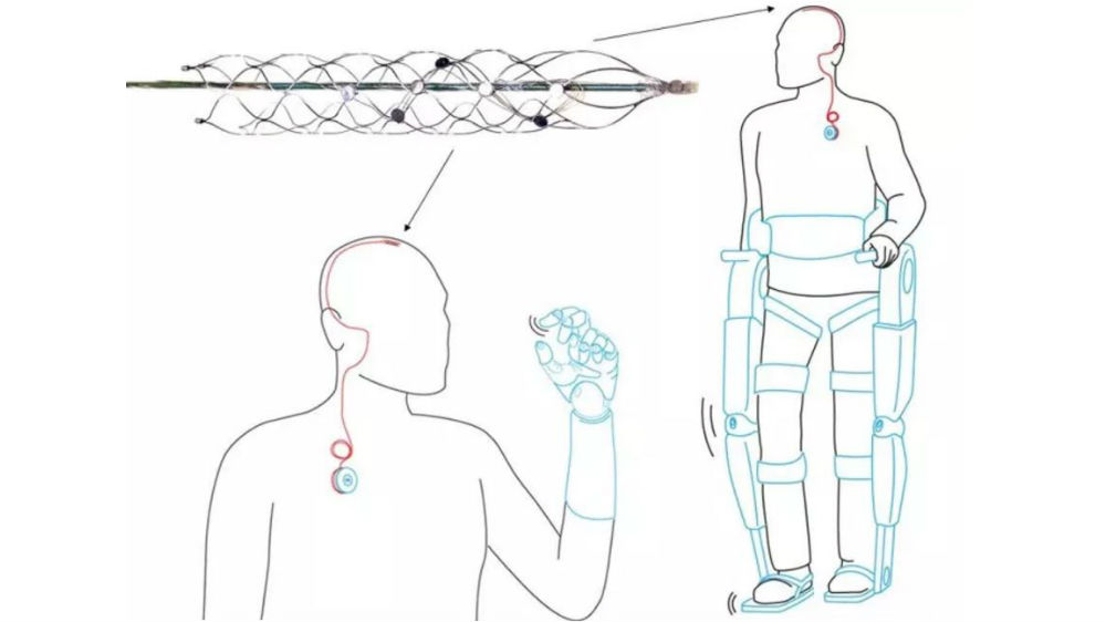 implantable-brain-device-enable-direct-recording-from-neurons-let-paralysed-move-again