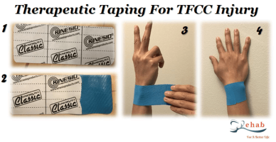 Image result for kinesio tape for tfcc tear