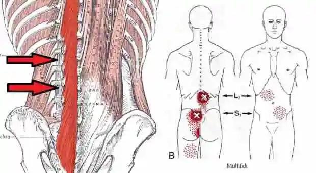 Fisioterapia en la lumbalgia: anatomía de los músculos multífidos ...