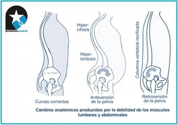 Biomecánica de la columna dorsal y lumbar o Raquis dorsal y lumbar