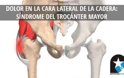 Sindrome del trocanter mayor