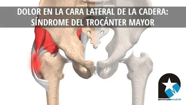 Dolor en la cara lateral de la cadera: Síndrome del trocánter mayor ...